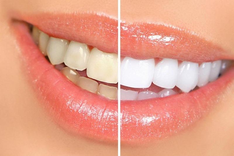 Стоматология чистка зубов в витебске