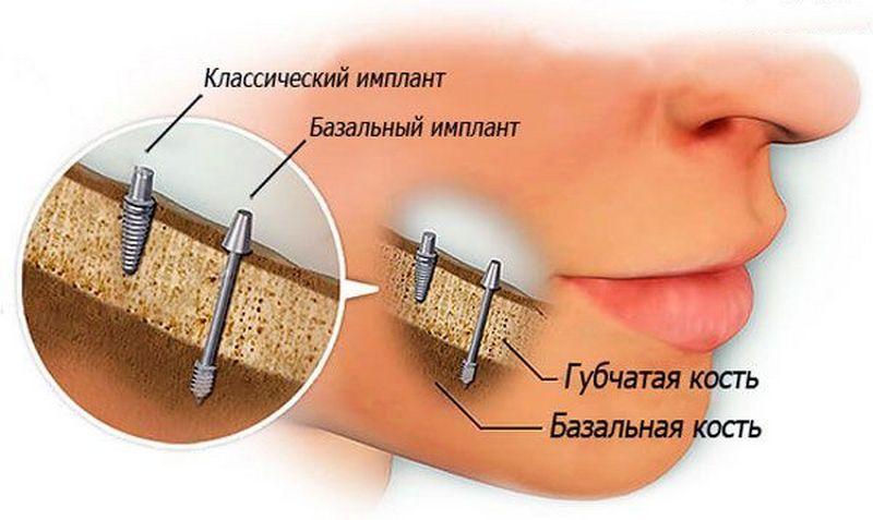 360Базальная имплантация зубов витебск